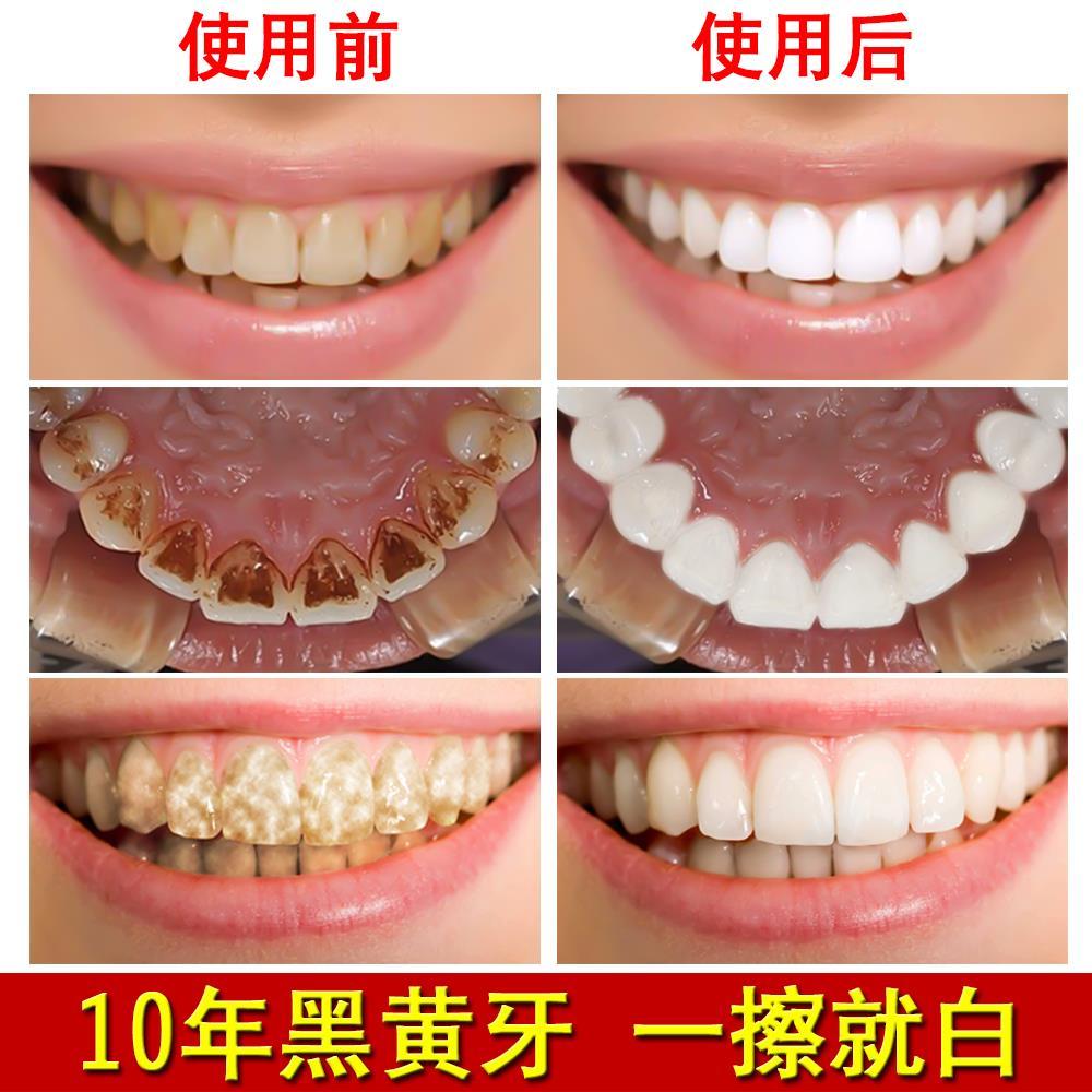2017 polvere bicarbonato di dentifricio sbiancante per i denti dei Denti è disponibile per le Macchie Giallo tartaro in Pietra...