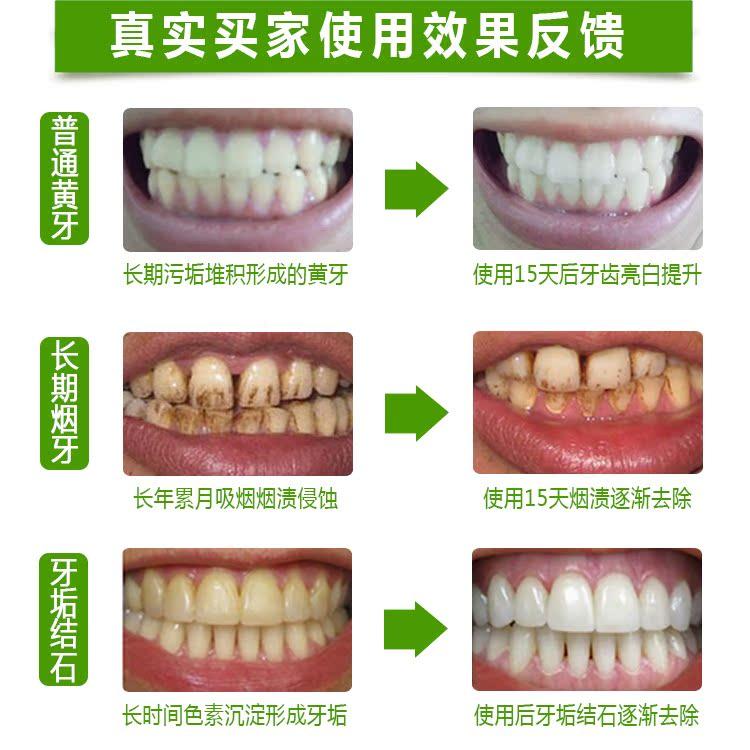 - a valódi betsy hiába a fogaid fehéríti fogpor dohányfoltok a foltokat a követ el. a rossz lehelet.